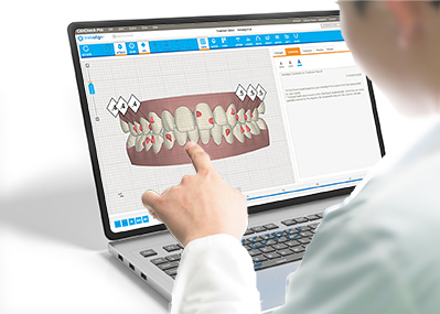 Invisalign ClinCheck: Detailierte 3D-Behandlungskonzeption